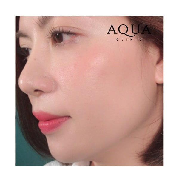 Aqua Clinic