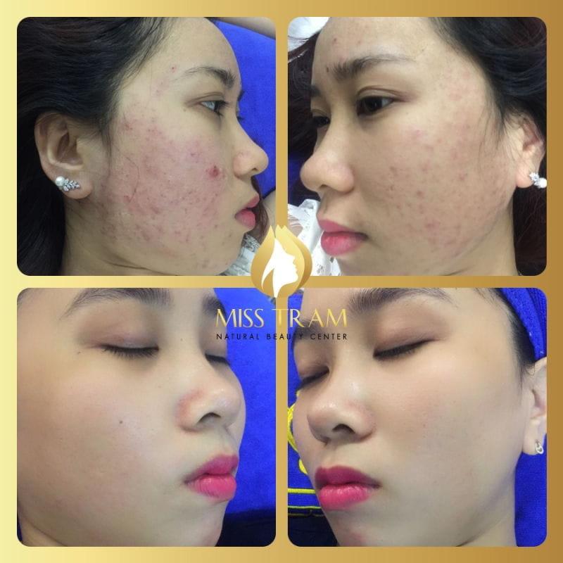 Thẩm mỹ viện Miss Trâm (Miss Tram – Natural Beauty Center)
