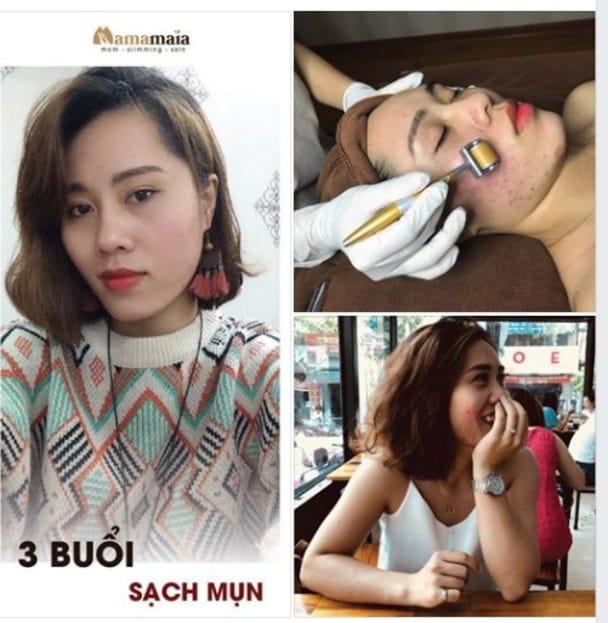 Da sạch mụn, hạn chế sẹo thâm, bật tone trắng sáng của khách hàng khi chăm sóc tại Mama Maia Spa